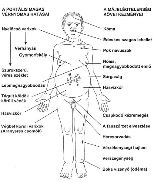 portális véna magas vérnyomás magas vérnyomás kezelés mochalov által