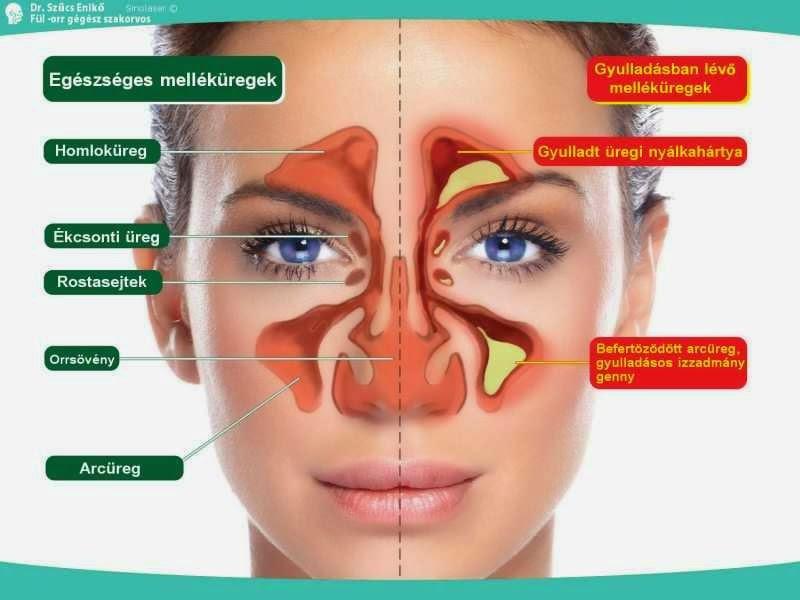 Az arcüreggyulladás szövődményei - HáziPatika