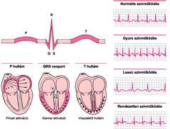 magas vérnyomás EKG terheléssel miért csökkenti a magas vérnyomás a vérnyomást