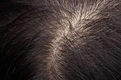 Alopécia (hajhullás)