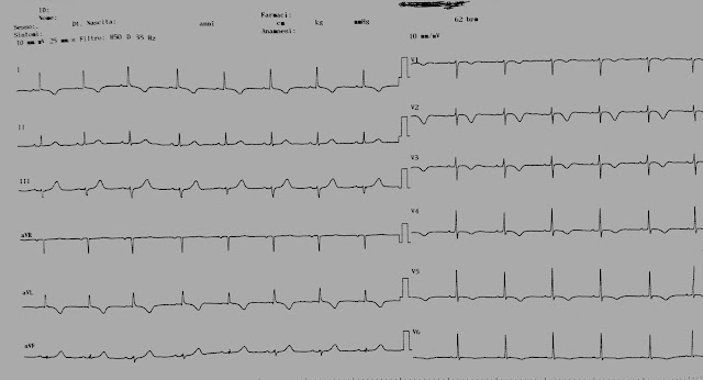 Hipotenzió (hipotenzió) - okok és kezelés - Magas vérnyomás