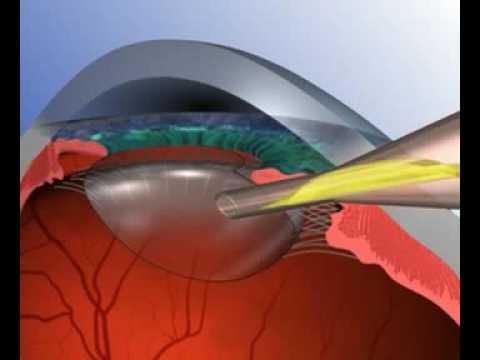 sült hal magas vérnyomás ellen mit kell inni magas vérnyomásból glaukómával