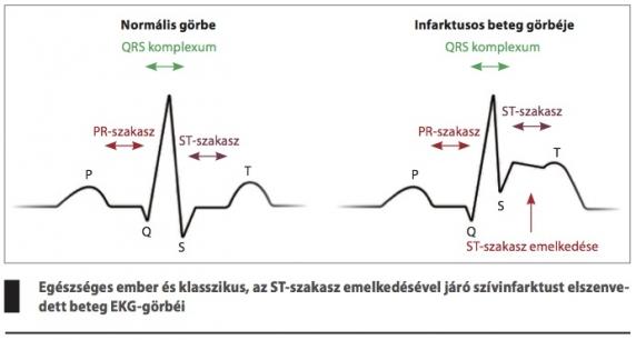 a magas vérnyomás EKG jelei
