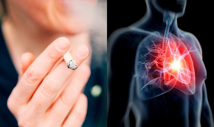 pressoterápia és magas vérnyomás lehetséges-e szemsebészeti beavatkozás magas vérnyomás esetén