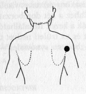 Hagyományos orvoslás módszerei a magas vérnyomás kezelésére, Komplex szemléletmód