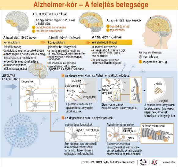 magas vérnyomás és alzheimer-kór ízületi vétel magas vérnyomás esetén