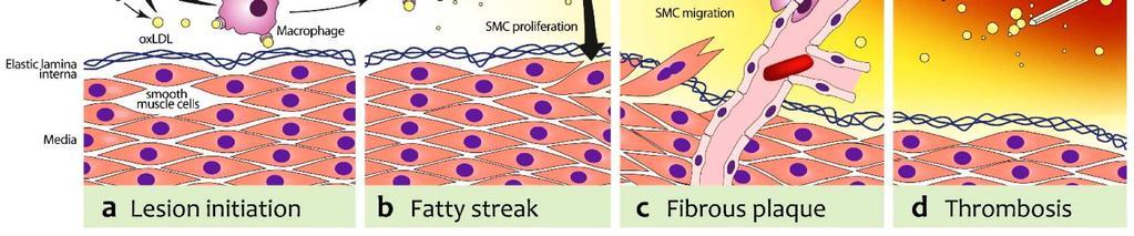 magas vérnyomás 3 fok milyen komplikációk