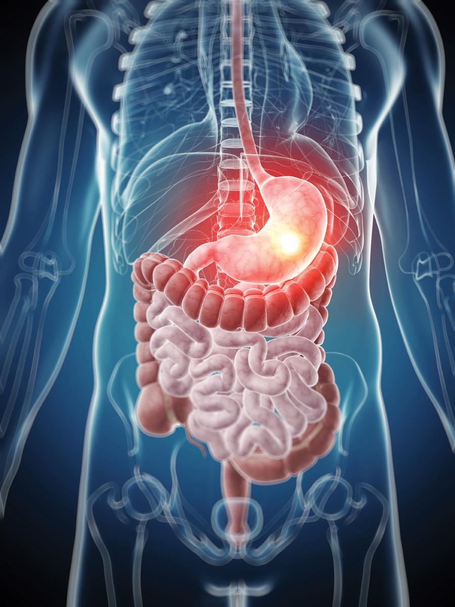 a táplálkozás hipertóniára gyakorolt hatása magas vérnyomás a szemben