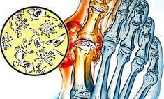 köszvény és magas vérnyomás kombinációja portális véna magas vérnyomás