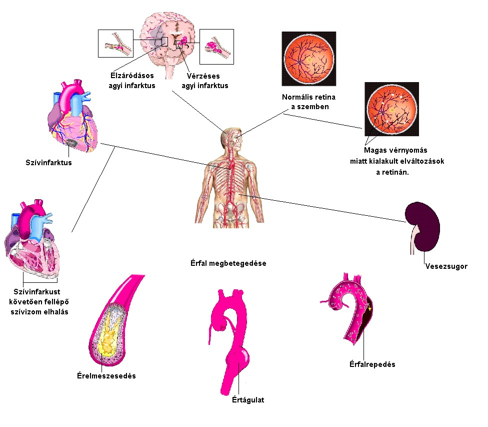 a cukor hipertóniás hatása akupresszúrás séma magas vérnyomás esetén