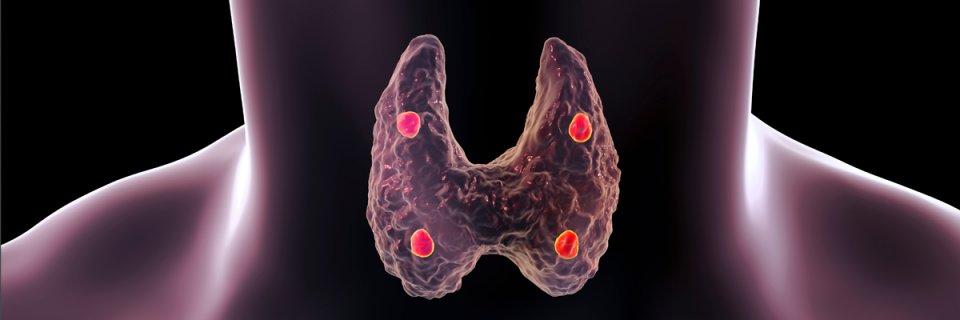 oka lehet a pajzsmirigy hipertóniája