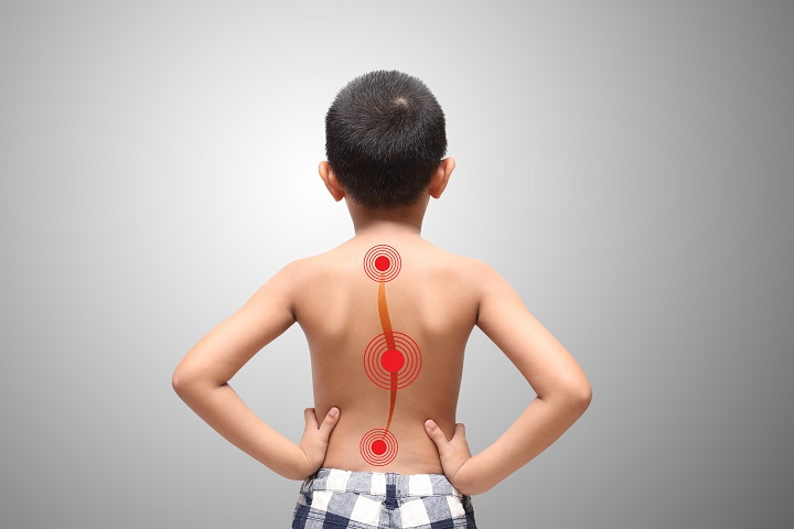 a scoliosis okozta magas vérnyomás 3 fokos magas vérnyomás tünetek és kezelés