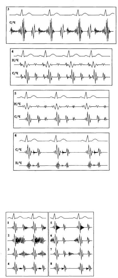 magas vérnyomás krízis jelei magas vérnyomás hány szakaszában