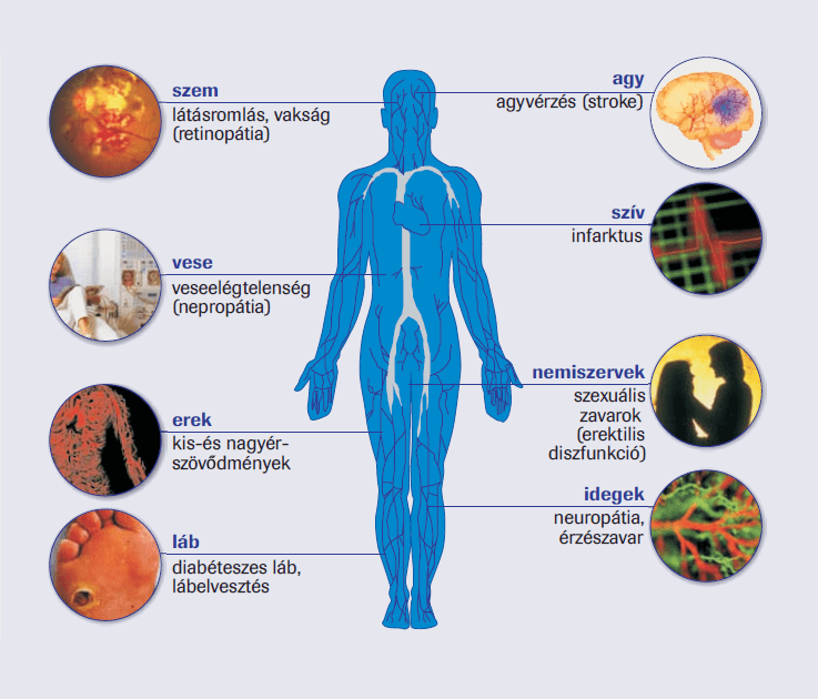 magas vérnyomás és cukorbetegség esetén