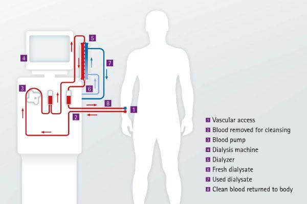 magas vérnyomás és hemodialízis magas vérnyomás és hipertónia