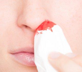 Mit tegyünk, ha vérzik az orrunk? - Útikalauz anatómiába