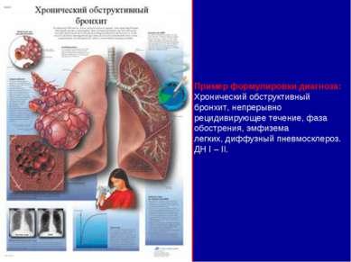 Hipertóniás betegség: az okok, a kezelés, a prognózis, a stádium és a kockázat mértéke